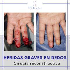 Reconstrucción de punta digital - Dr. Edgar Ramírez López