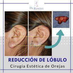 Reducción de lóbulo de oreja - Dr. Edgar Ramírez López