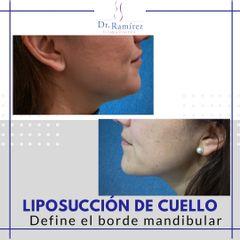 Liposuccion de cuello - antes y después