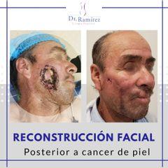 Reconstrucción facial - antes y despés