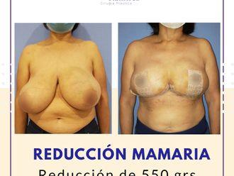Reducción de mamas - 737525