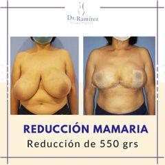 Reducción mamaria Inmediato
