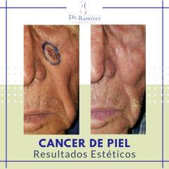Carcinoma Mejilla