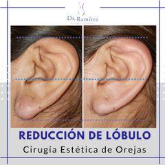 Reducción de lóbulo de oreja
