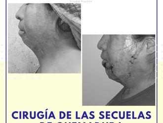 Cirugía plástica reconstructiva - 739924