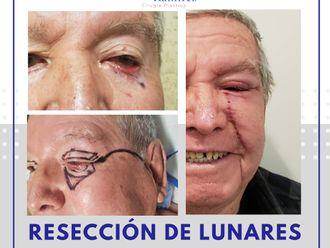 Cirugía plástica reconstructiva - 739932