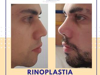 Rinoplastia - 740668