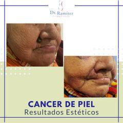 Resección de carcinoma - Dr. Edgar Ramírez López