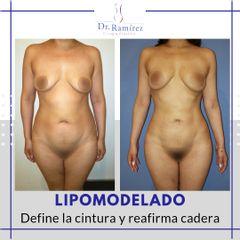 Lipoescultura - Dr. Edgar Ramírez López