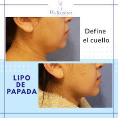 Liposucción de papada - Dr. Edgar Ramírez López