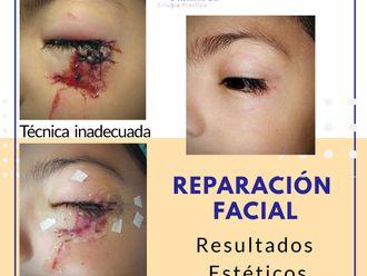 Cirugía plástica reconstructiva - 785880