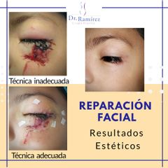 Cirugía reconstructiva - Dr. Edgar Ramírez López