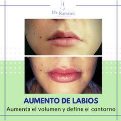 Aumento de labios - Dr. Edgar Ramírez López