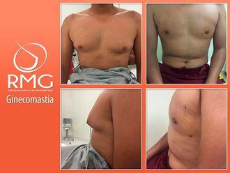 Cirugía ginecomastia - 634217