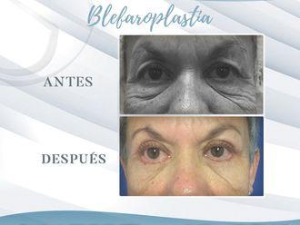 Blefaroplastia - 648721