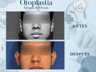 Otoplastia-650348