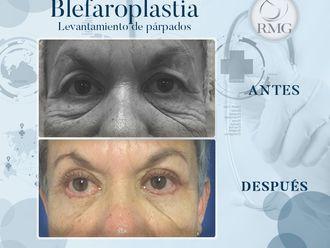 Blefaroplastia-650349