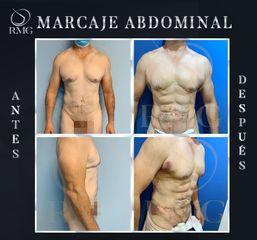 Marcación Abdominal - Dr. Rodrigo Mata González