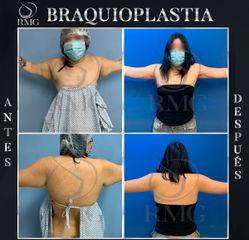Braquioplastia - Dr. Rodrigo Mata González
