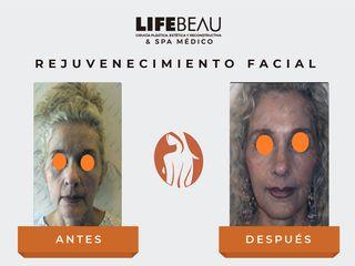 Dr. Aarón Guerrero Rivas - Rejuvenecimiento Facial