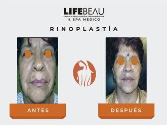 Rinoplastia - 632629