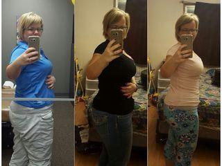 Lipectomia Antes 14 días después de cirugía y 19 días después