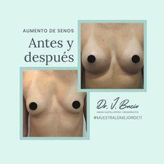 Aumento de busto - Dr. José Javier Bucio Duarte