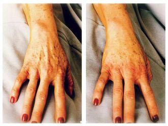 Ácido hialurónico-640123