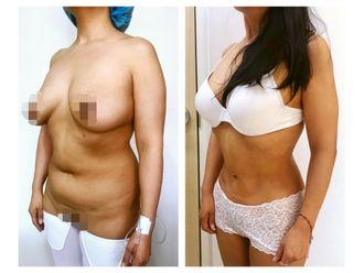 Cirugía para cicatrices - 640178