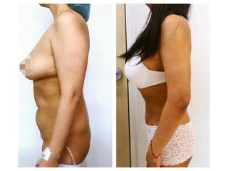 Cirugía para cicatrices