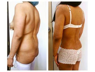 Cirugía para cicatrices - 640180