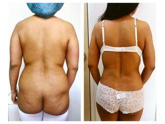 Cirugía para cicatrices - 640181