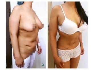 Cirugía para cicatrices - 640182