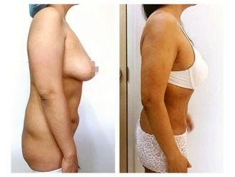 Cirugía para cicatrices-640183