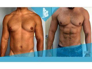 Liposucción - Dr. Christian Augusto Morales Orozco