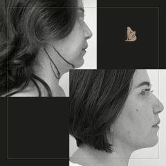Liposucción de papada - Dr. Christian Augusto Morales Orozco