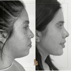 Rinoplastia + lipopapada - Dr. Christian Augusto Morales Orozco