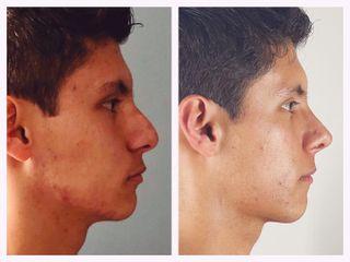 Rinoplastia - Dr. Christian Augusto Morales Orozco