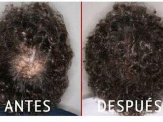 Alopecia-645389