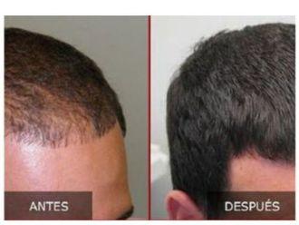 Trasplante de cabello - 645391