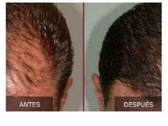 Alopecia-645392