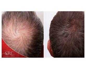Alopecia-645393