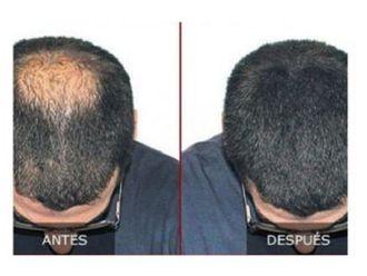 Trasplante de cabello - 645394