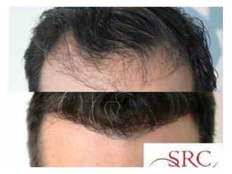 Trasplante de cabello - 645395