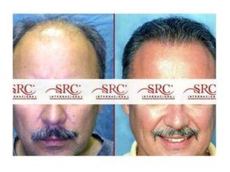 Trasplante de cabello - 645397