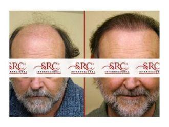 Trasplante de cabello - 645398