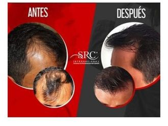 Trasplante de cabello - 645399