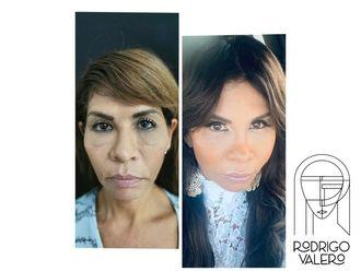 Rejuvenecimiento facial-740427