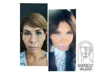 Rejuvenecimiento facial - Dr. Rodrigo Valero Jarillo