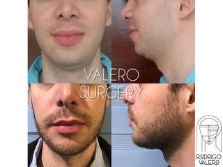 Cirugía de papada - Dr. Rodrigo Valero Jarillo